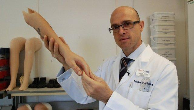 The future of prosthetics