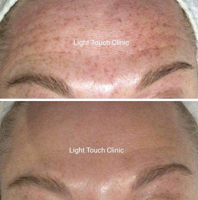 sun-safe-light-touch-clinic.jpg