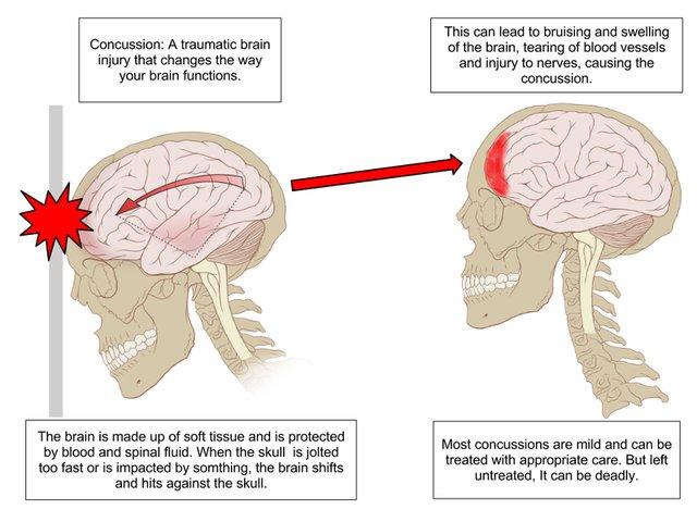concussion diagram.jpg