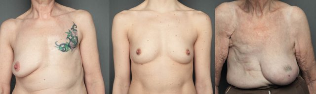 bare reality breast composite.jpg