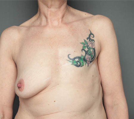 bare reality breast 01a.jpg