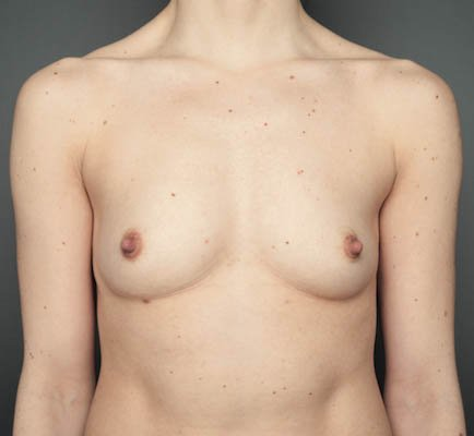 bare reality breast 02a.jpg
